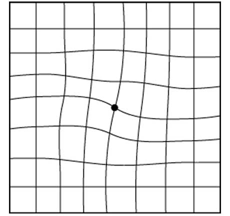Picture of an Amsler grid with distortion
