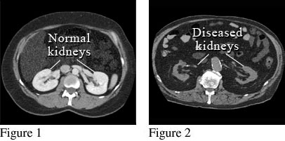 CT scan showing normal kidneys and damaged kidneys