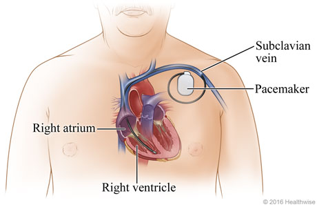 Location of pacemaker in upper-left chest, showing its lead through subclavian vein and into right ventricle