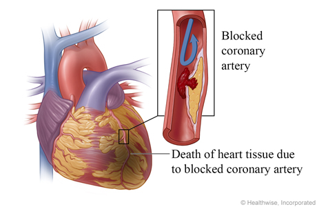 Blood clot completely  blocks coronary artery, causing a heart attack and death of heart tissue