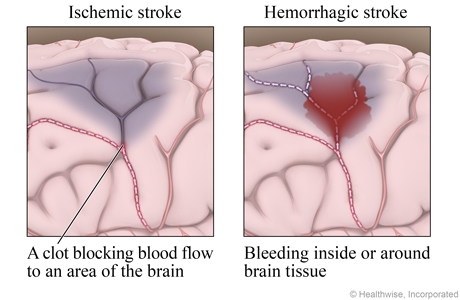 Damage in the brain causing an ischemic stroke and a hemorrhagic stroke