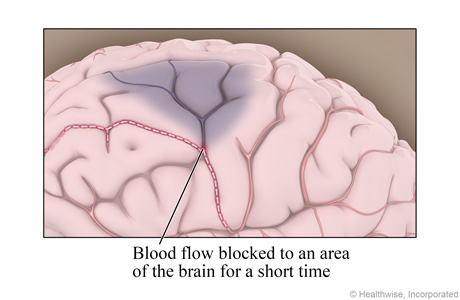 Blood flow blocked to an area of the brain for a short time