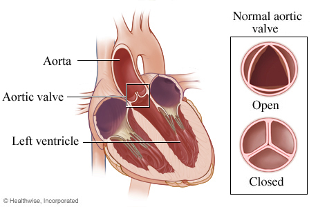 Location of aortic valve in heart and detail of open and closed valve