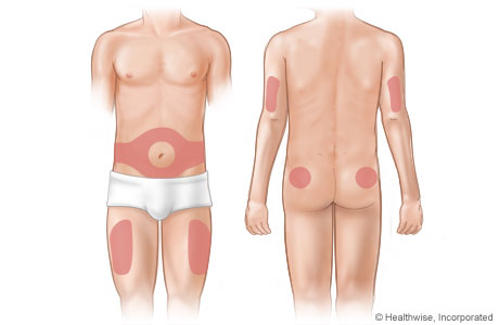 Areas on the body where insulin is injected