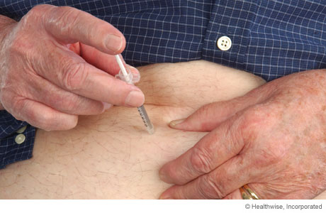 Inserting the needle into the pinched-up area of skin
