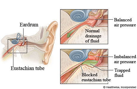 Normal and blocked eustachian tubes