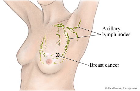 Axillary lymph nodes and where they are located