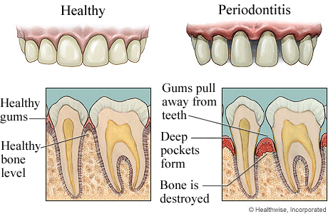 Healthy gums and advanced gum disease, with detail of both