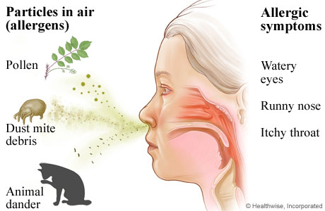 Breathing in pollen, dust mite debris, and animal dander, and the allergy symptoms they cause