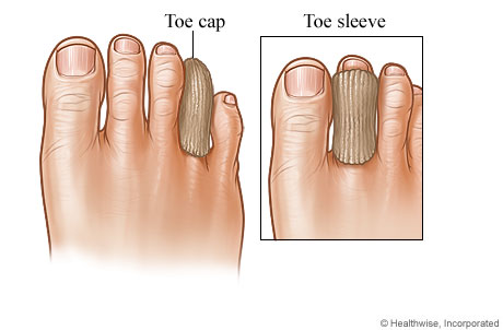 A toe cap on a toe and a toe sleeve on a toe