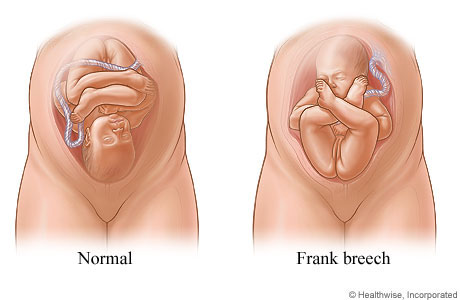 Normal position and frank breech position of fetus