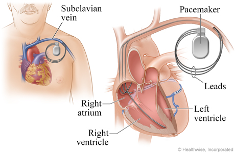 Location of pacemaker and how it connects to the heart