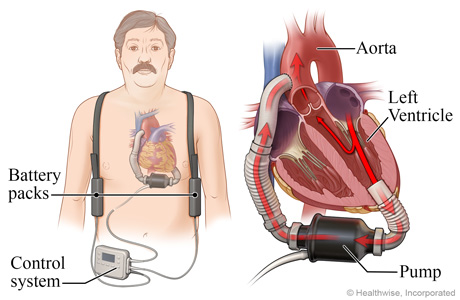Location of pump, battery packs, and controller, with detail of LVAD pumping blood from the heart