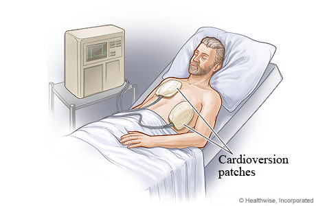 Electrical cardioversion with patches on chest