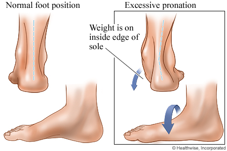 Normal foot position and excessive pronation