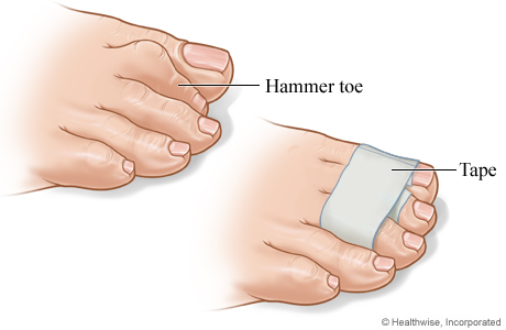 A wrapped hammer toe
