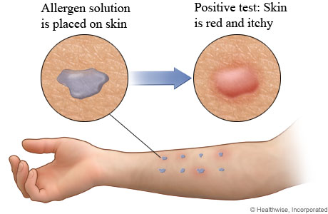 Allergen solution on arm and positive result