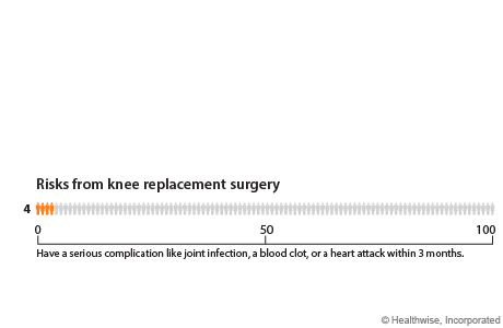 Out of 1,000 people who have knee replacement surgery, 2 to 6 will die of any cause within 4 to 6 weeks after surgery, and 10 will have a serious joint infection within 10 years after surgery.