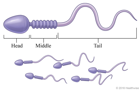 A group of sperm, with detail  of a single sperm