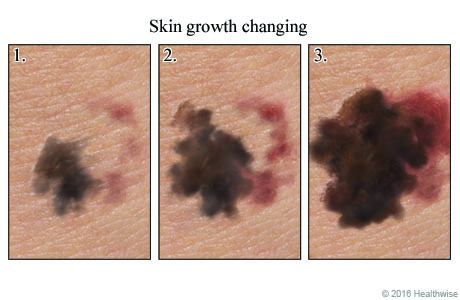 Three images that show a skin growth getting larger over time