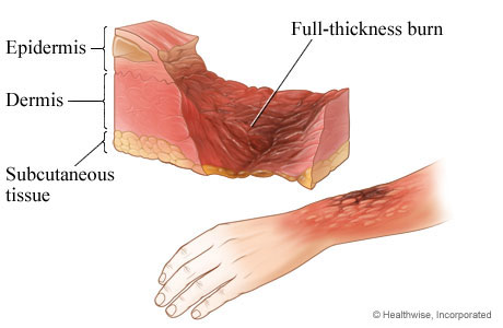 Third-degree burn: full-thickness burn