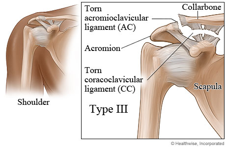Type III shoulder separation