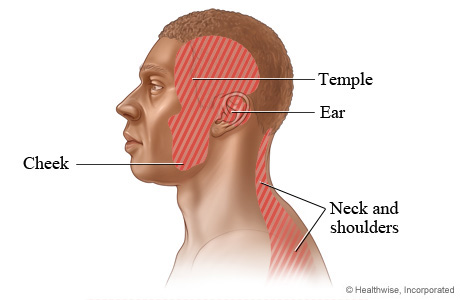 Areas where TMD pain may occur: The cheek, temple, ear, and neck and shoulders