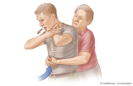 Picture of choking rescue procedure (Heimlich maneuver)