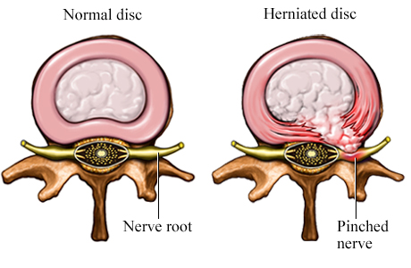 Picture of a normal disc compared to a herniated disc (cross section)