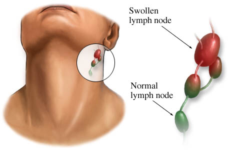 Swollen glands (lymph nodes) and normal lymph node