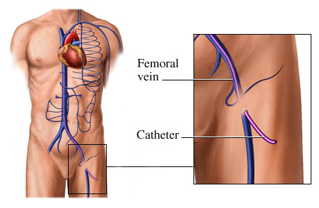 How a catheter is placed in the femoral vein