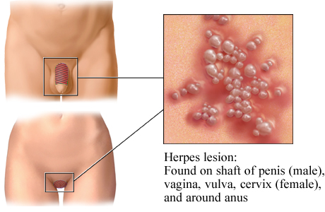 Herpes simplex virus type 2 lesion and usual locations